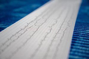 doença grave eletrocardiograma coração cardíaca